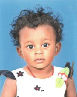 Jodie, 18 mois, est atteinte d'une CIV